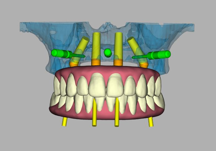 A digital, 3D image of an entire mouth for a dental implant treatment plan